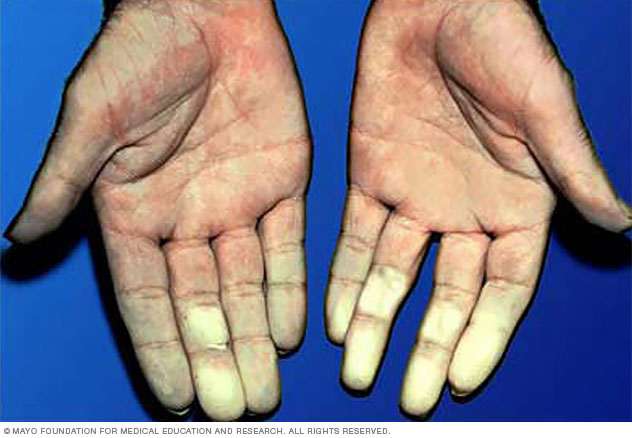 Hands affected by Raynaud