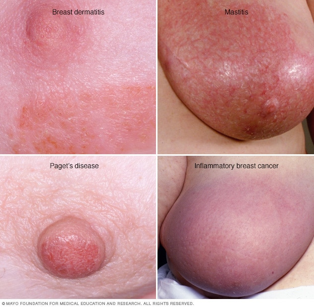 Breast rashes